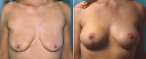 breast-lift-aug-11a