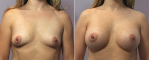 breast-augmentation-8-1-2-3-4-a.jpg