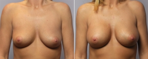 breast-augmentation-06a.jpg