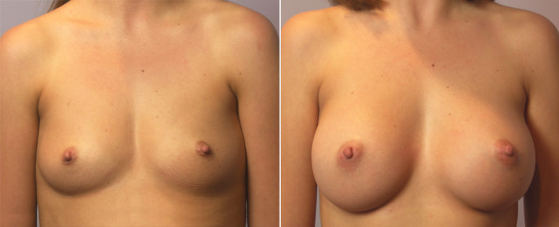 About breast enlargement