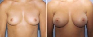 breast-augmentation-09a.jpg