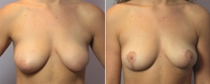 breast-lift-10a.jpg