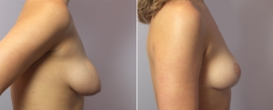 breast-lift-10c.jpg