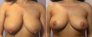 breast-reduction-12a