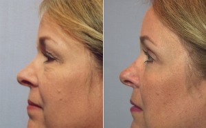 blepharoplasty-upper-01c