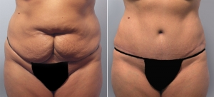 abdominoplasty-13a.jpg