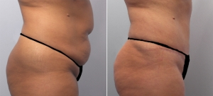 abdominoplasty-13c.jpg
