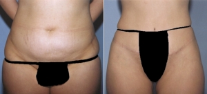abdominoplasty-14a.jpg