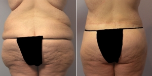 abdominoplasty-16d.jpg